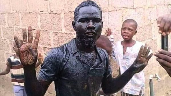 "Photo of ""I'm not dead""— Bauchi man who drank 'gutter water' to celebrate Buhari's victory"