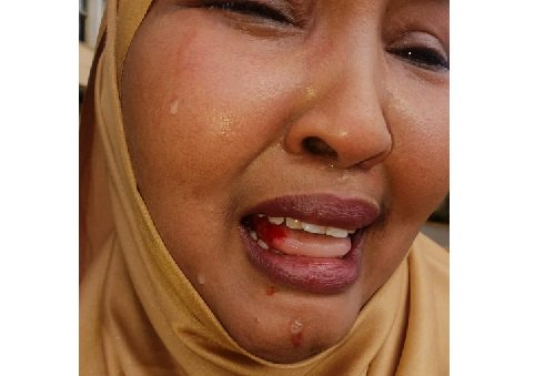 Photo of Female Lawmaker Beaten Up By Colleague