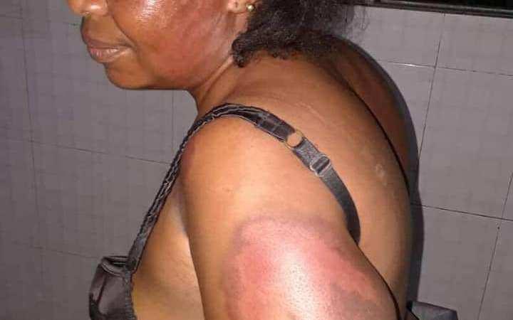lawmaker beats up woman