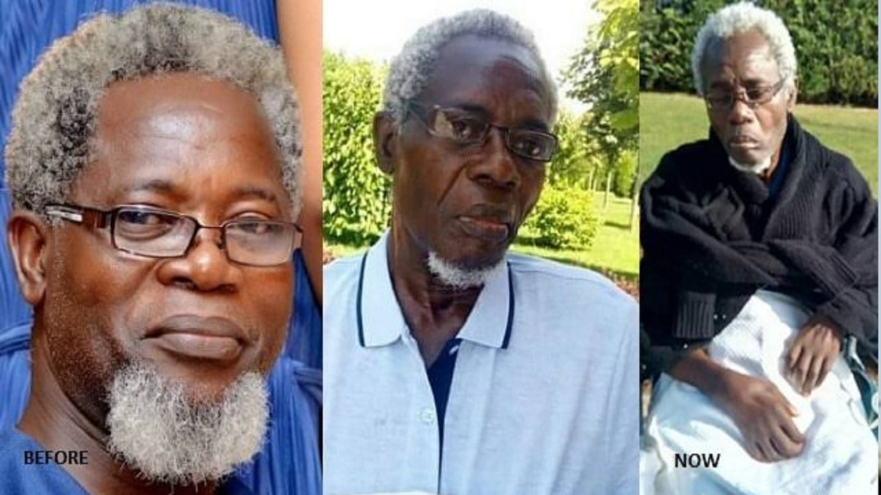 Victor Olaotan Suffers Legs Infection, Both Legs To Be
